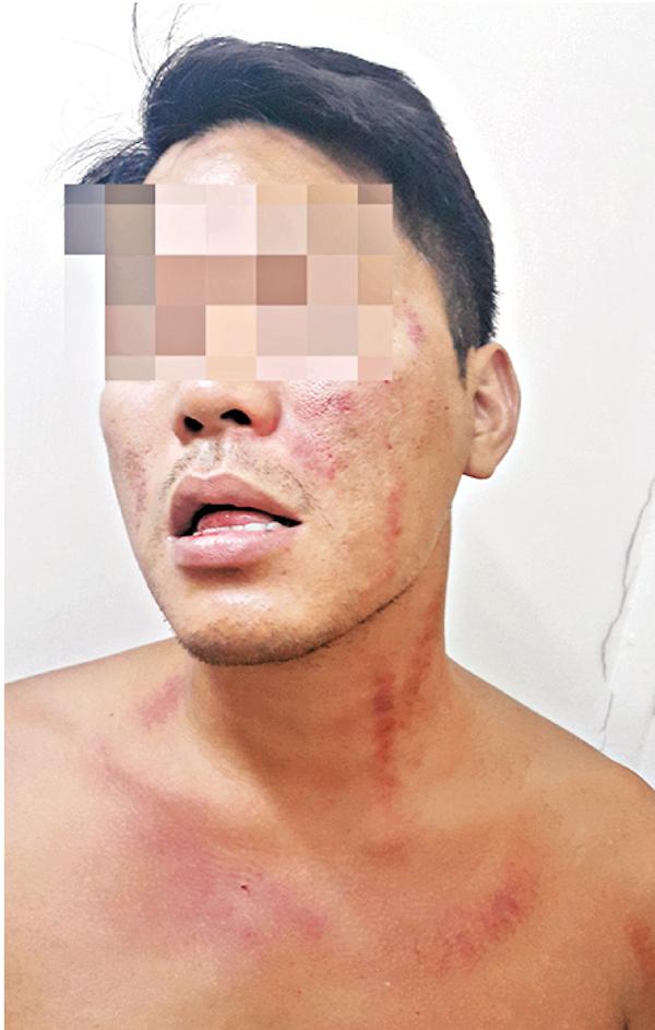 ■記者被梁天琦毆致嘴角、胸口有瘀傷。