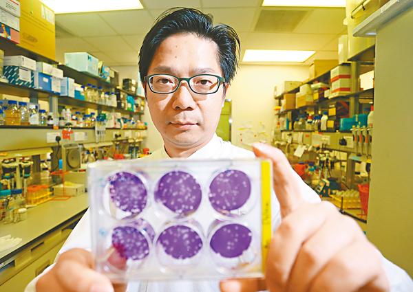 ■潘烈文團隊主要研究病毒的傳播模式,圖為感染病毒的細胞樣本。 莫雪芝 攝