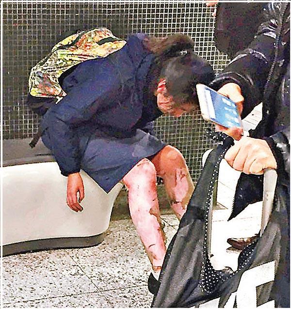 ■女學生高芷楠腳部被燒傷,現時情況嚴重。