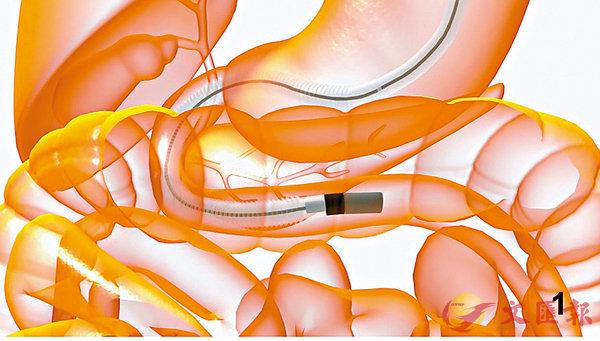 ■新技術可精準定位腸道出血位置、進行藥物注射,及抽取組織化驗。 中大供圖