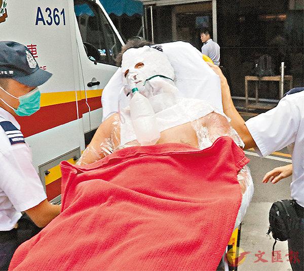 ■機房搶火意外中六成皮膚燒傷的工人。 香港文匯報記者劉友光  攝