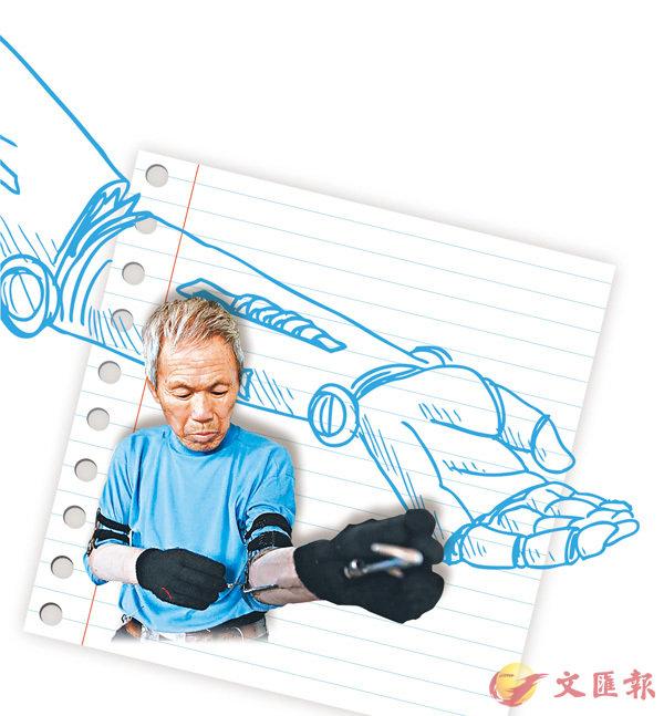 ■ 孫吉發給自己安裝義肢。 網上圖片