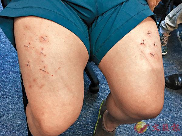 ■林子健「被擄」後,在記者會上展示遭虐打和留在雙腳大腿上的21口釘書釘。 資料圖片