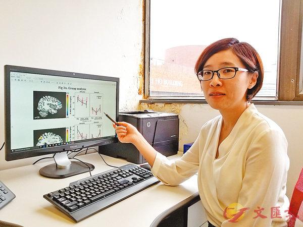 ■張偲偲指隨�茪�斷研究,發現失樂症對患者日常生活影響也許比當初想像更大。香港文匯報記者姜嘉軒  攝