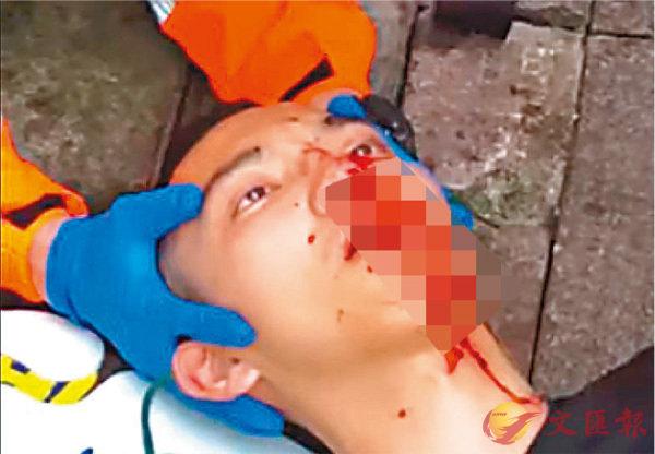 ■網上昨日流傳這名口鼻流血的男子「已死」的消息不實。