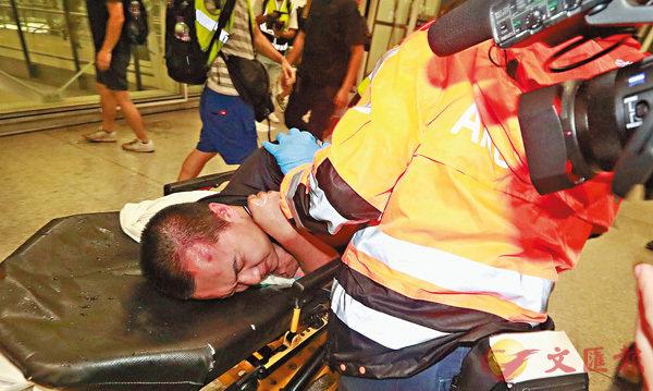 ■《環球時報》記者頭部有明顯傷痕,送院治理。 香港文匯報記者 攝