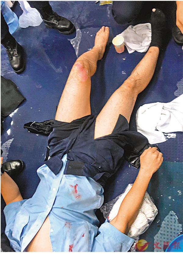 ■警員被暴徒縱火致二級燒傷。資料圖片