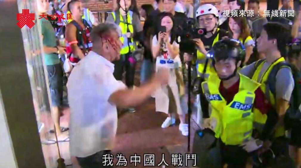921暴徒於元朗毆打多名市民 一傷者不退縮我為中國人戰鬥