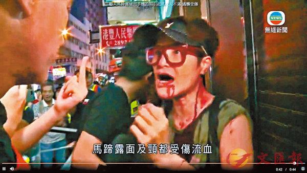 10月6日  ■藝人馬蹄露拍攝暴徒毀壞中銀分行時,遭暴徒襲擊受傷。 資料圖片