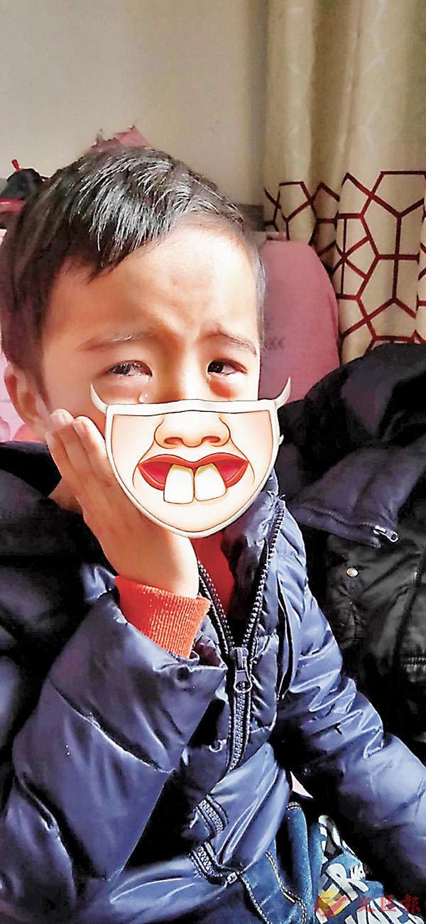 ■麥氏6歲兒子受牙痛折騰。受訪者供圖