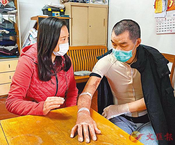 ■李伯向前來探望的葛珮帆展示自己腫脹瘀黑的手臂。葛珮帆供相