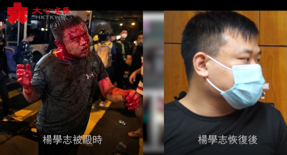 普立茲照片被襲者:冀港區國安法遏制黑暴