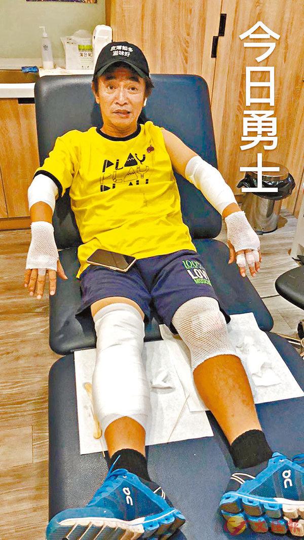 ■ 藝人KID上載吳宗憲受傷後的照片,並封敬業的他為「今日勇士」。